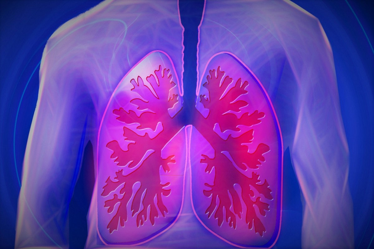 Image:Society Fellow identifies the cause of wheezing in the Lungs